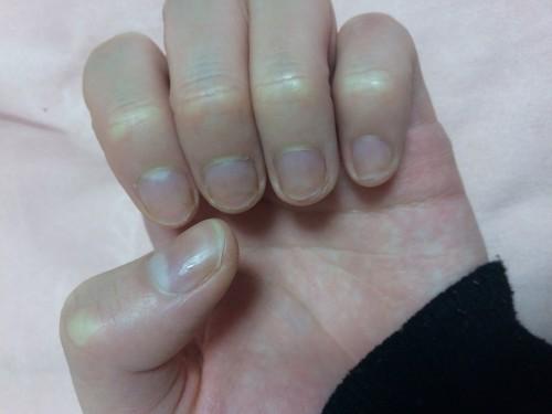 大島椿で爪がつやつやになった
