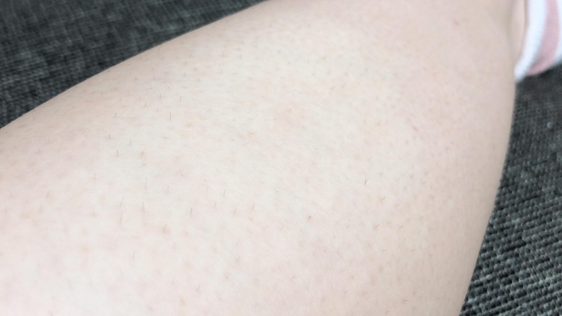 プリュムインバスリムーバーの除毛効果