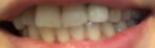 スパークリングイレーサーの差し歯との違い